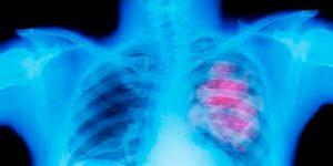 El ozono y su relación con el cáncer